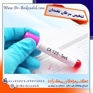 تشخیص-سرطان-تخمدان